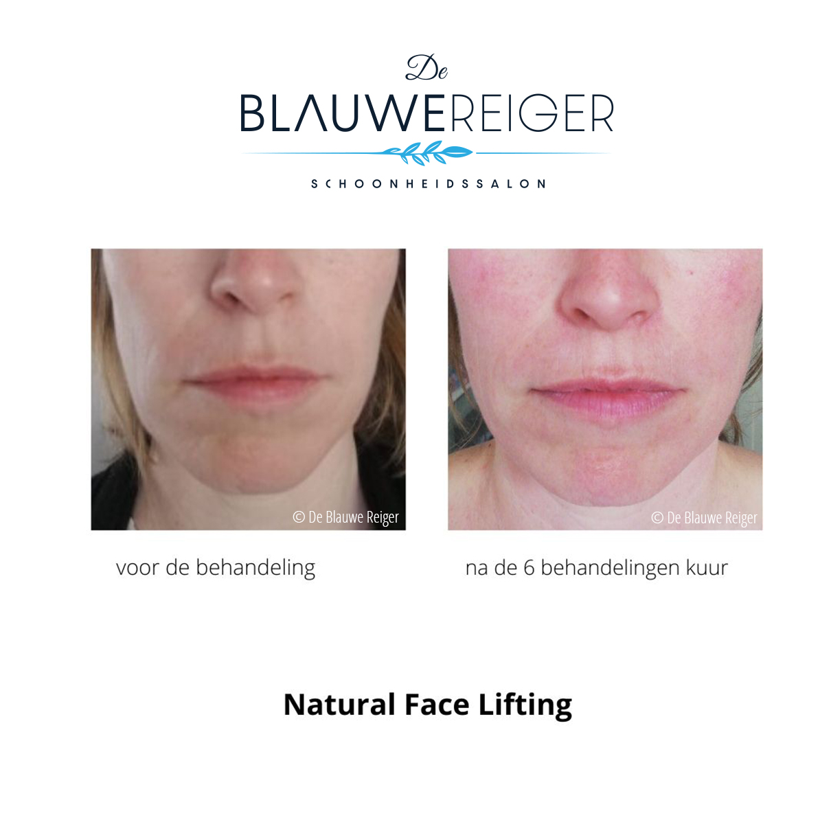 de blauwe reiger greenpeel natural face lifting